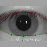 verieye_eyelids800